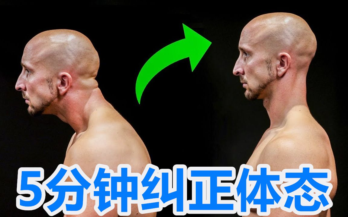【Channel Lean】3个动作5分钟 纠正不良体态 #德国兄弟# #中文#